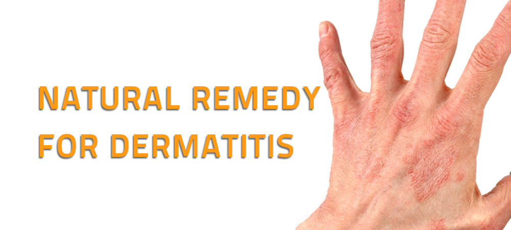 Natural Remedy for Dermatitis