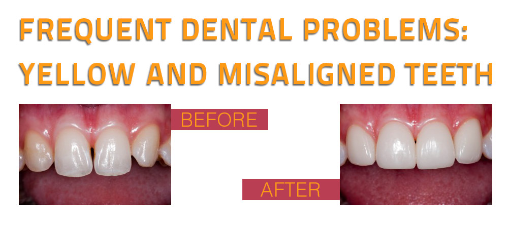 Frequent dental problems yellow and misaligned teeth 1