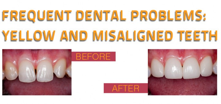 Frequent dental problems yellow and misaligned teeth 2